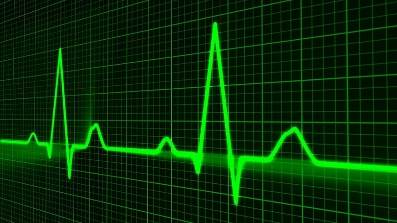 Laser Detect Heartbeat